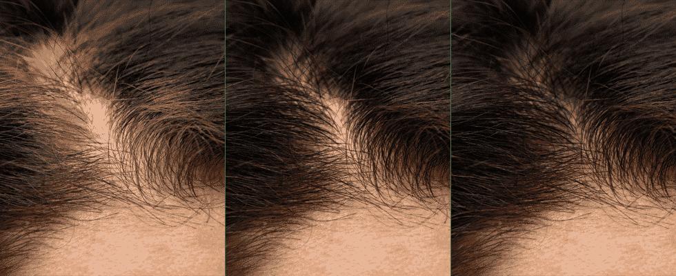 ترمیم مو بانوان خانم ها زنان موی طبیعی