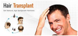 عوارض ترمیم مو چیست بانوان آقایان روش کاشت مو